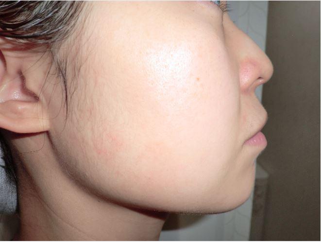 ノエビアエクストラ薬用クレンジングフォーム使用前の頬